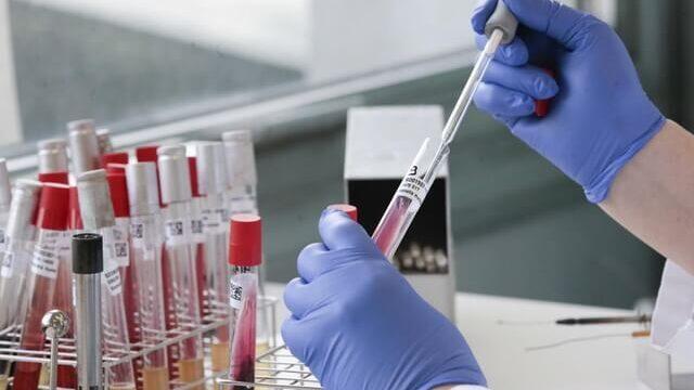 Лабораторне тестування на COVID-19